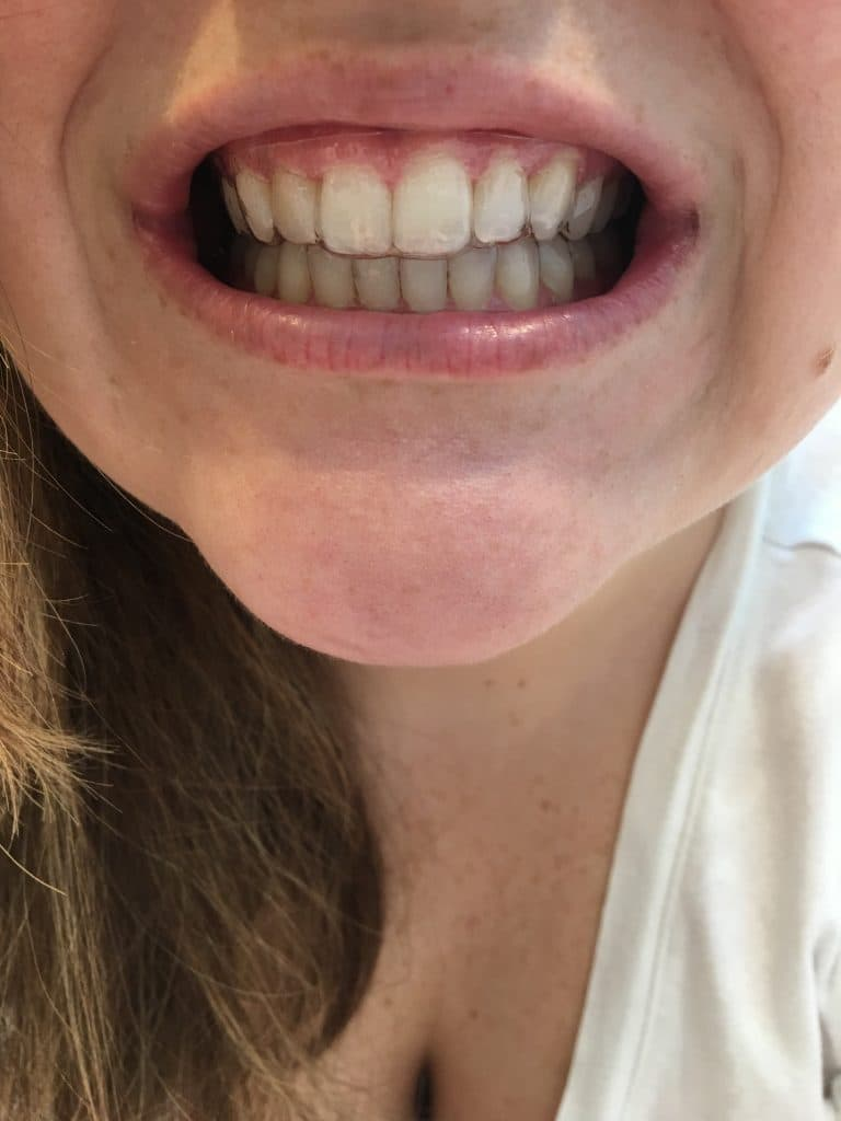 Smile Direct Club refinements and real results!