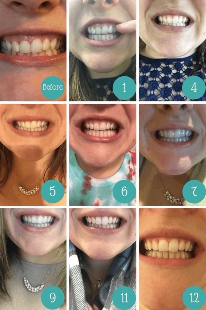 My Smile Direct Club results after 6 months of wearing invisible aligners!