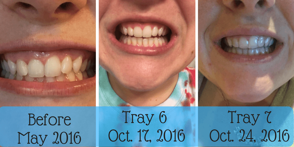 Smile Direct Club Aligners On