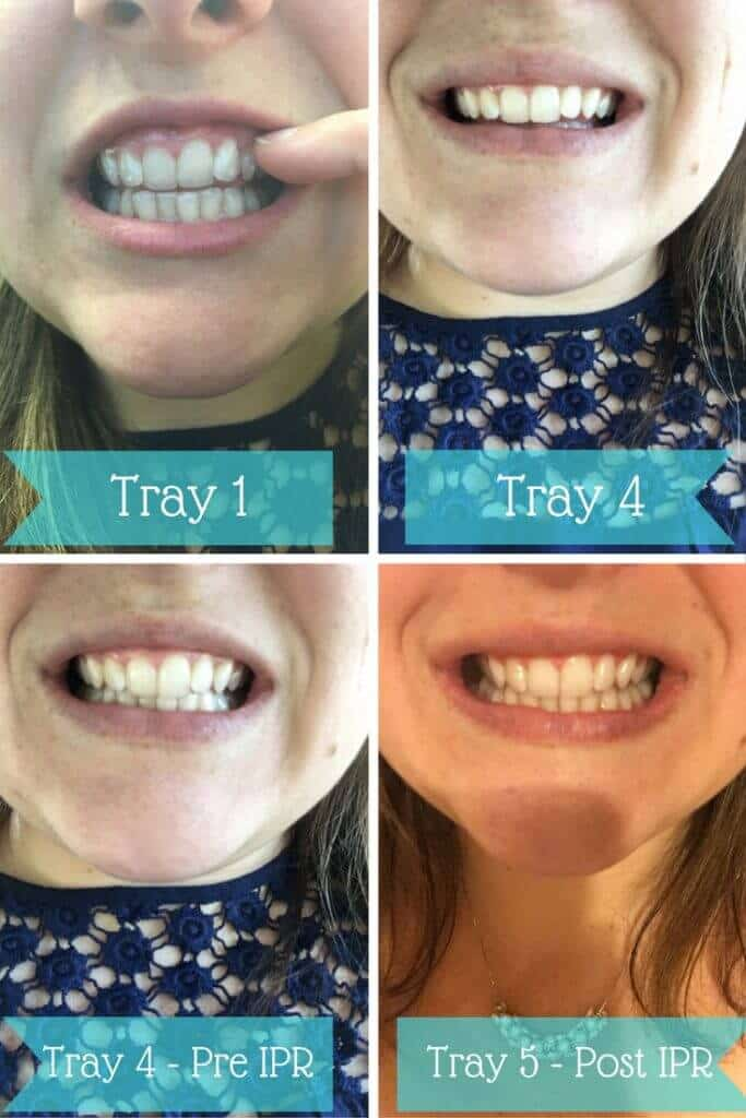 SmileDirectClub Progress photos