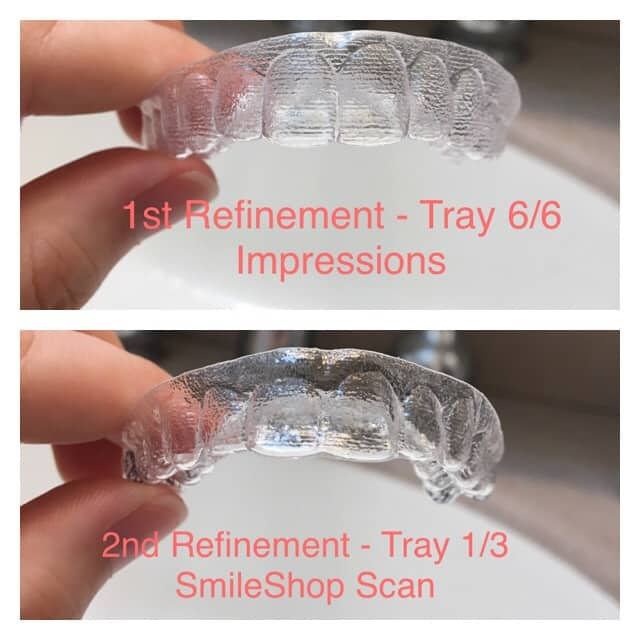Aligner differences from 1st and 2nd rounds with Smile Direct Club.