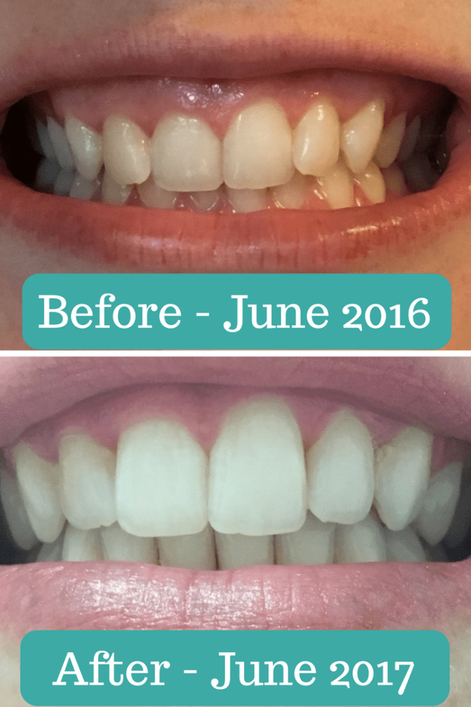 Smile Direct Club Before and After Photo
