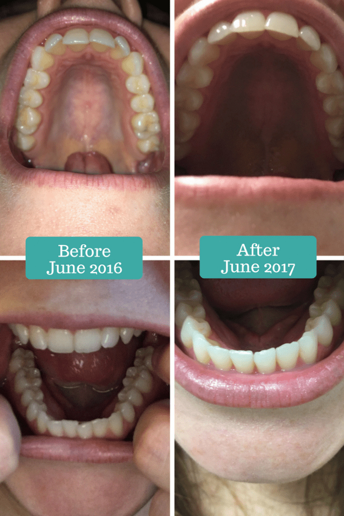 Smile Direct Club Before and After