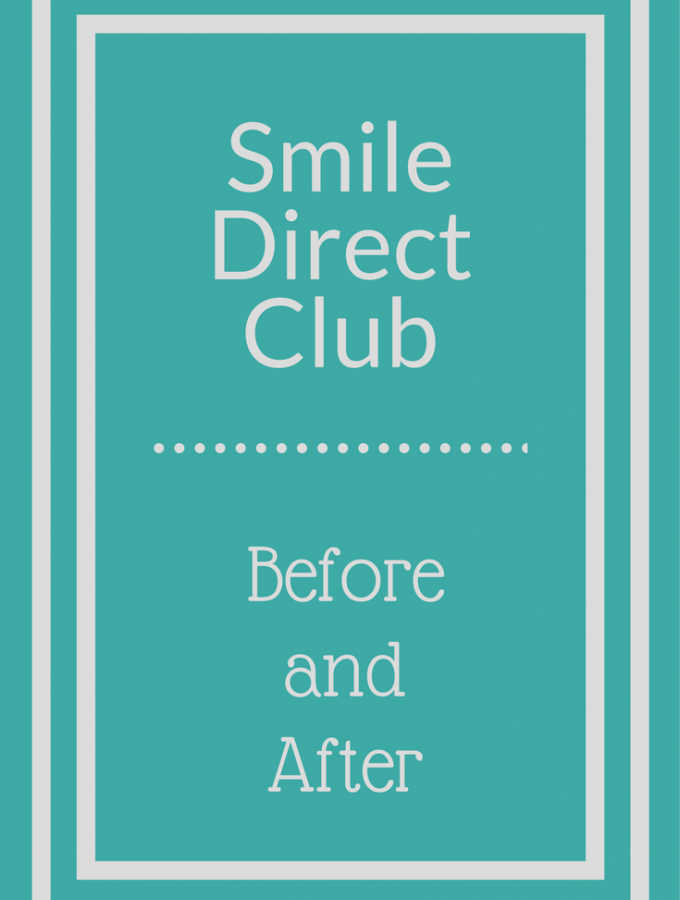 Smile Direct Club Before and After – 1 Year Later
