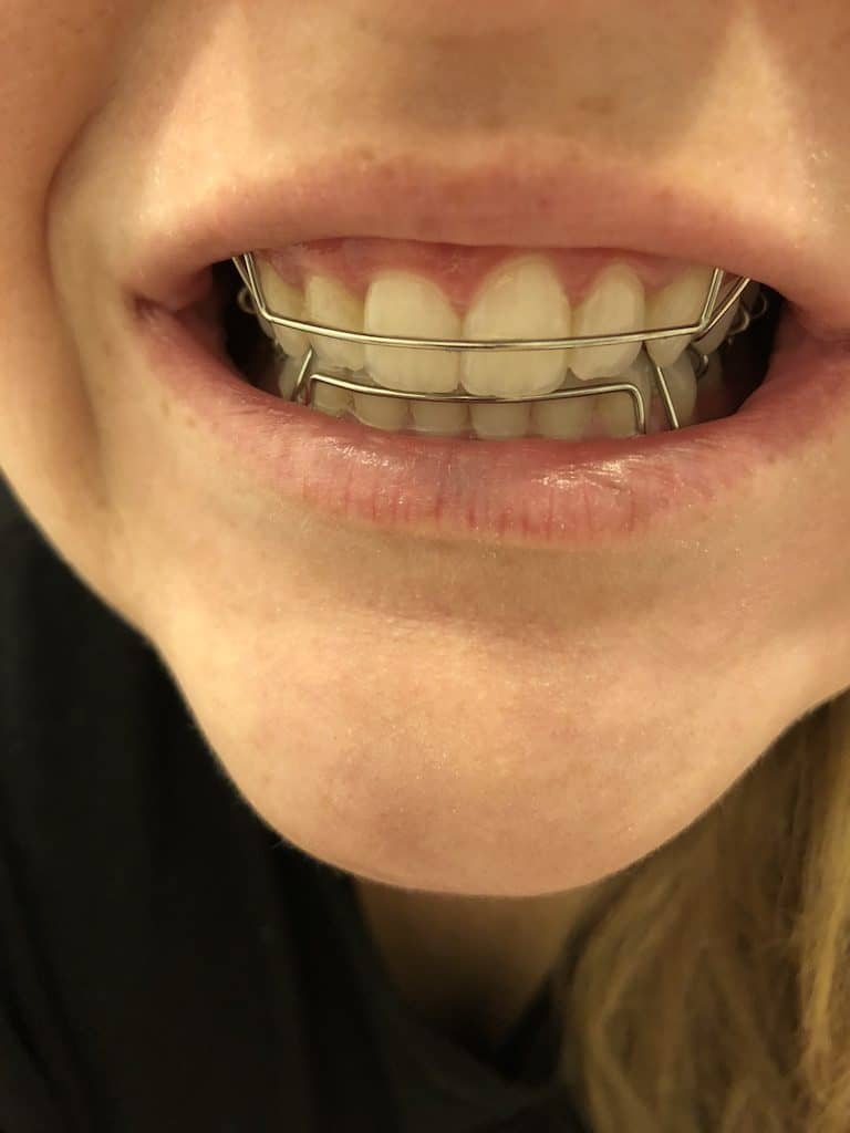 Hawley Retainers After Invisible Aligners – Citrus & Delicious