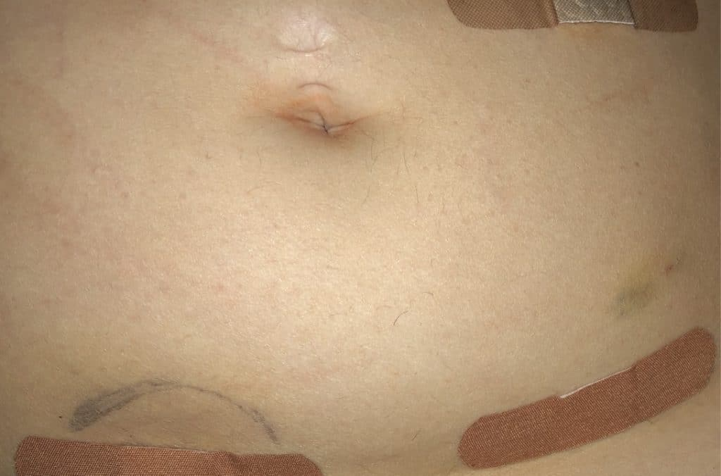 Bandaged area after my appendicitis and appendectomy.